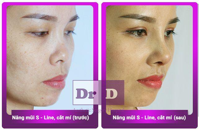 Phái nữ Việt thay đổi diện mạo nhờ nâng mũi, bấm mí