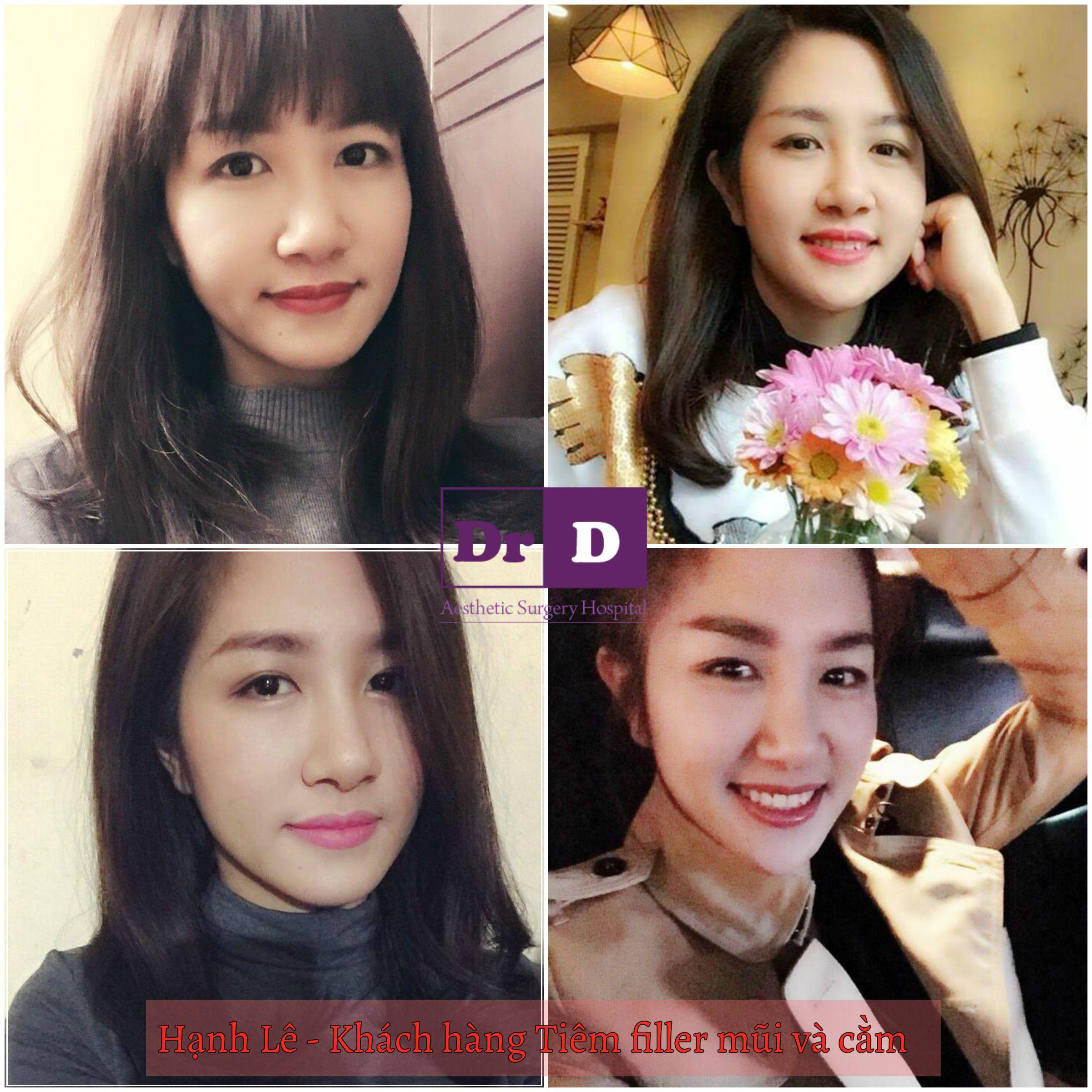 muon-selfie-dep-thi-mat-phai-dep (3)