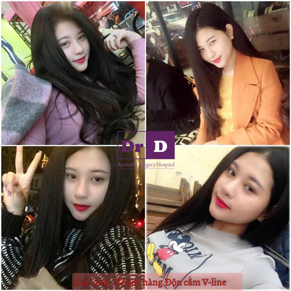 muon-selfie-dep-thi-mat-phai-dep