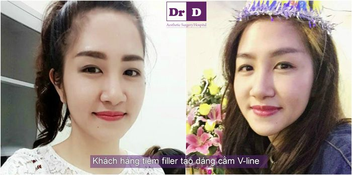 bac-si-dien-don-cam-tai-dong-theo-ti-le-vang-(3)