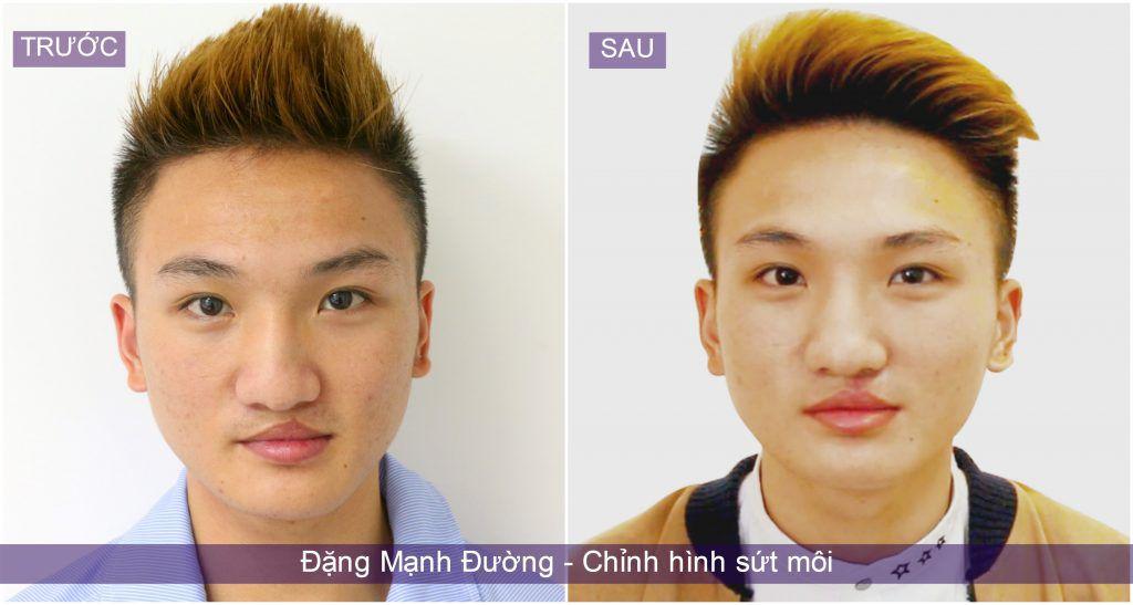 dang-manh-tuong