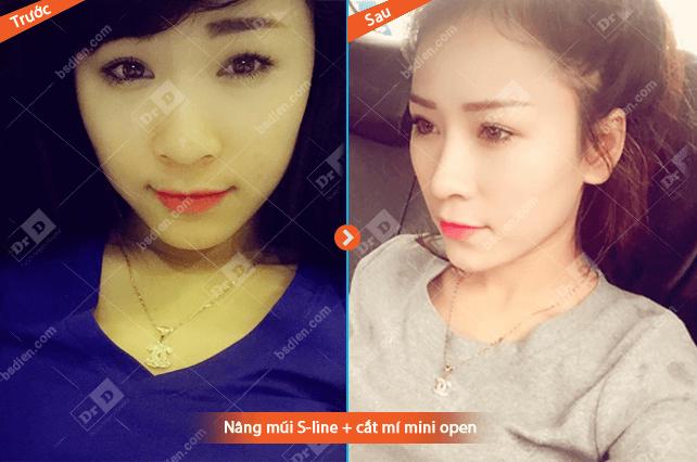 thay-doi-dien-mao-voi-combo-nang-mui-s-line-va-tao-mat-2-mi (2)