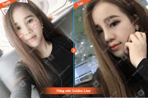 mui-golden-line-so-sanh