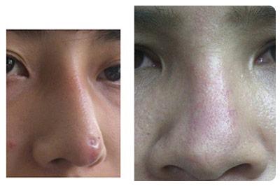 biến chứng mũi sau phẫu thuật