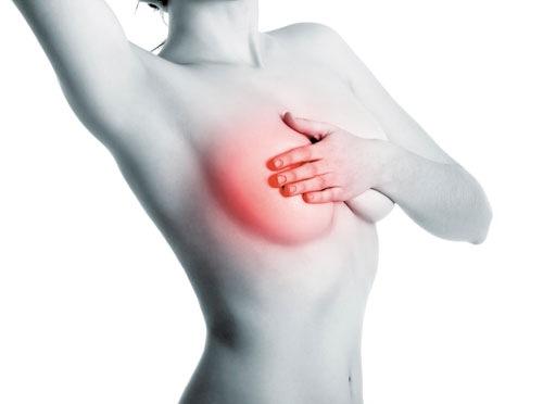 Nhiều nguyên nhân dẫn đến bao xơ ngực