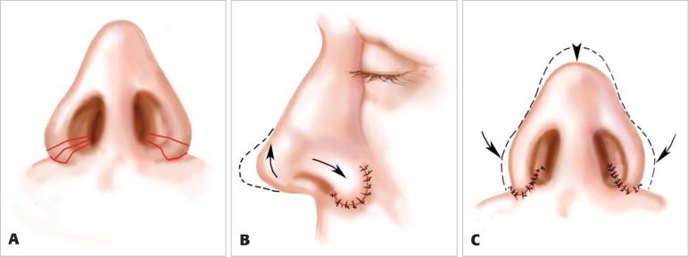 Kĩ thuật cắt cánh mũi