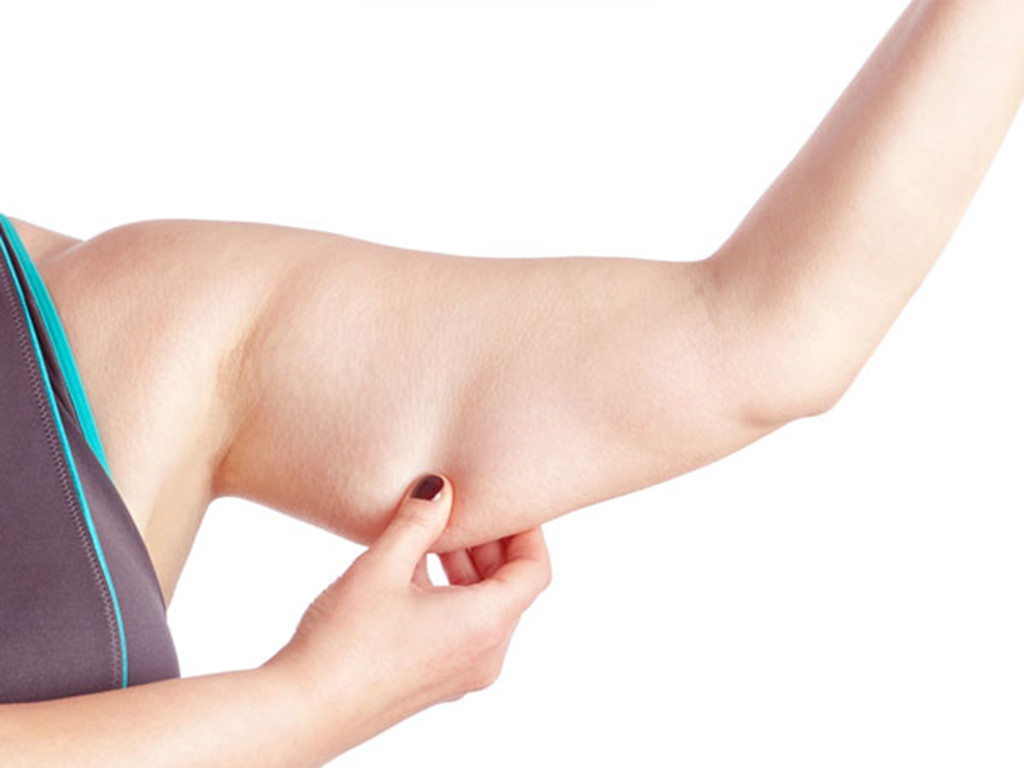 Mỡ thừa cánh tay luôn khiến chị em mất tự tin khi diện đồ