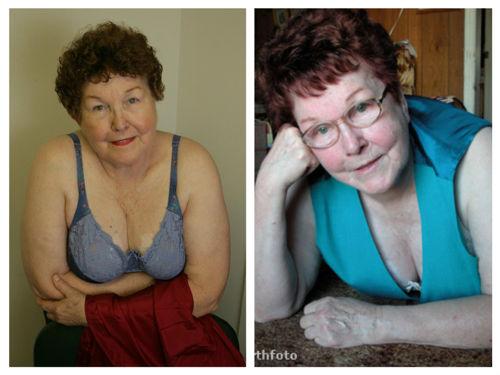 Timmie Jean Lindsey sau 50 năm nâng ngực vẫn có bầu ngực đẹp, khỏe mạnh