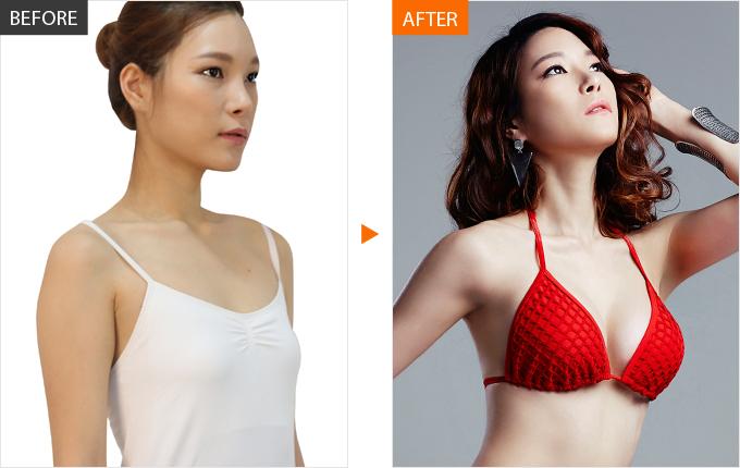 Nâng ngực giúp bạn cải thiện vòng 1 nhanh chóng, an toàn