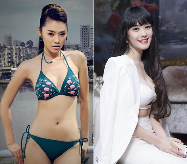 Trước và sau khi nâng ngực