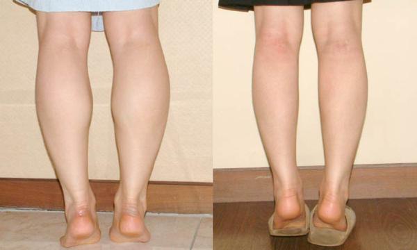 Thu gọn bắp chuối giúp chân thon đẹp