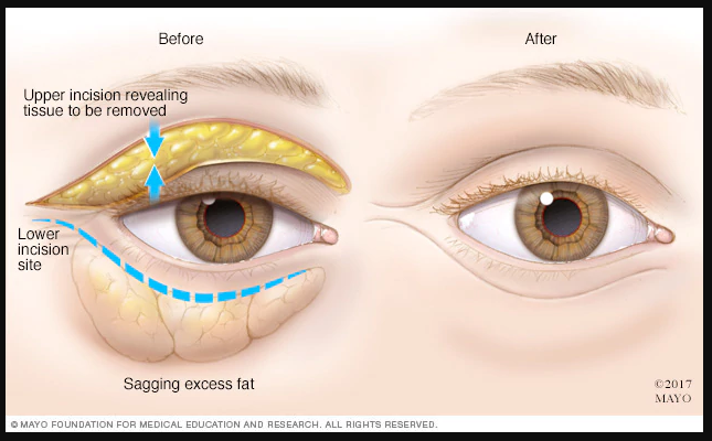 Mỡ mắt ở vùng trên và dưới của mí mắt