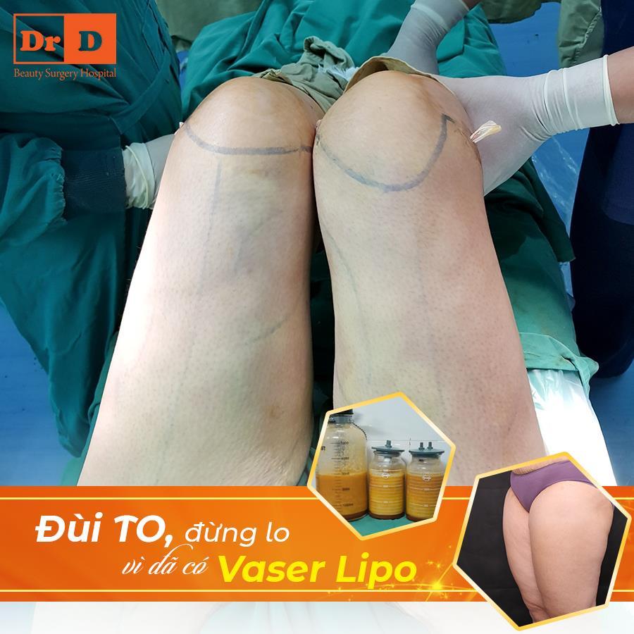 Vaser Lipo - Loại bỏ triệt để mỡ thừa trên cơ thể