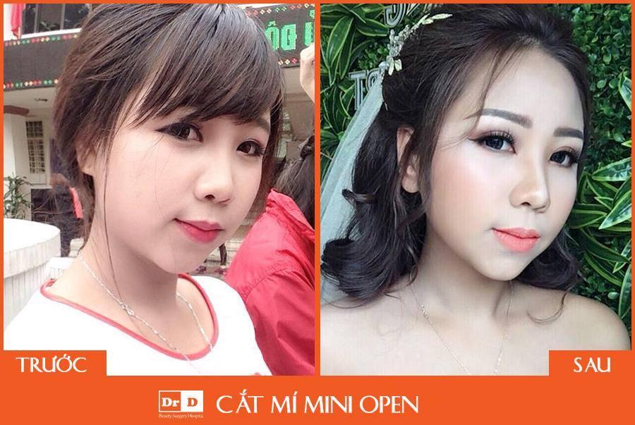 Hình ảnh khách hàng thực hiện cắt mí mắt Mini Open tại Thẩm mỹ DrD