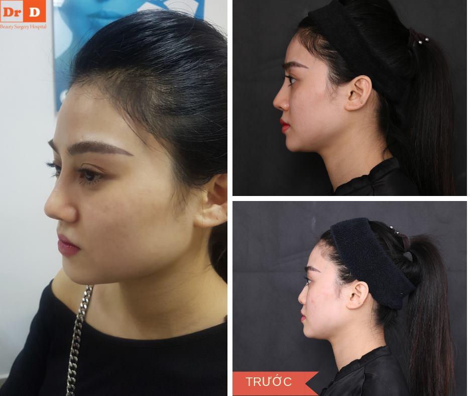Nâng mũi Golden–Line – Giải pháp cho tình trạng da mũi mỏng