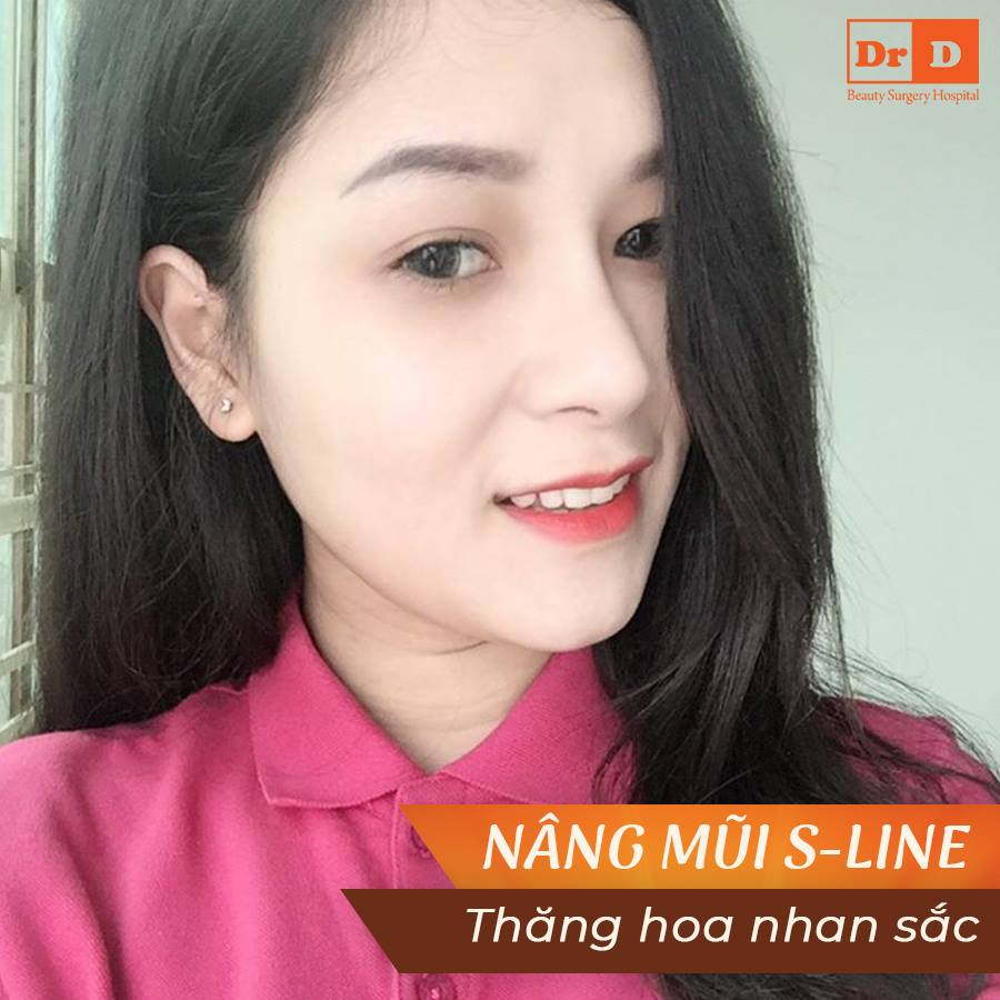 Nâng mũi S Line – Thăng hoa nhan sắc - Mũi đẹp dài lâu