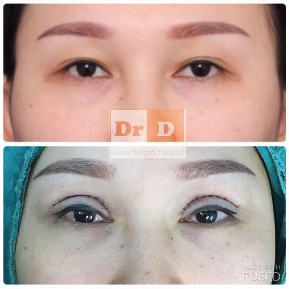 Cắt mí mắt duy trì hiệu quả lâu hơn