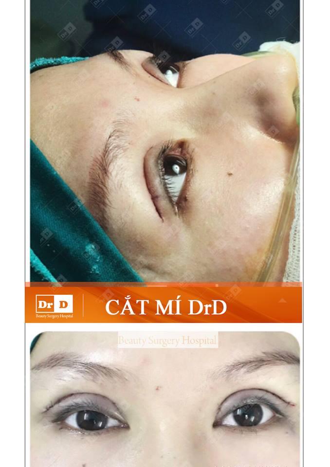 Trải nghiệm dịch vụ cắt mí mắt tại Thẩm mỹ DrD
