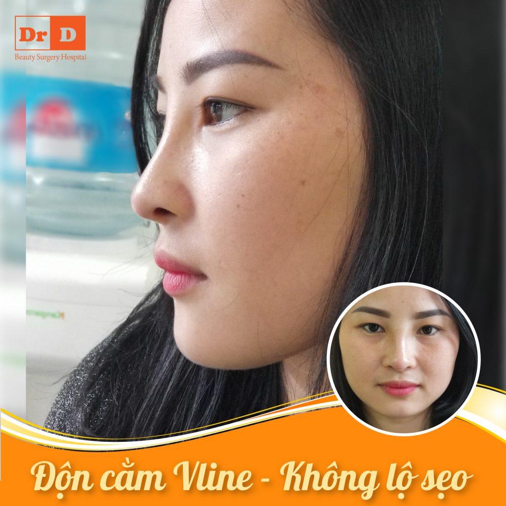 Độn cằm Vline - Không lộ sẹo thẩm mỹ sau phẫu thuật