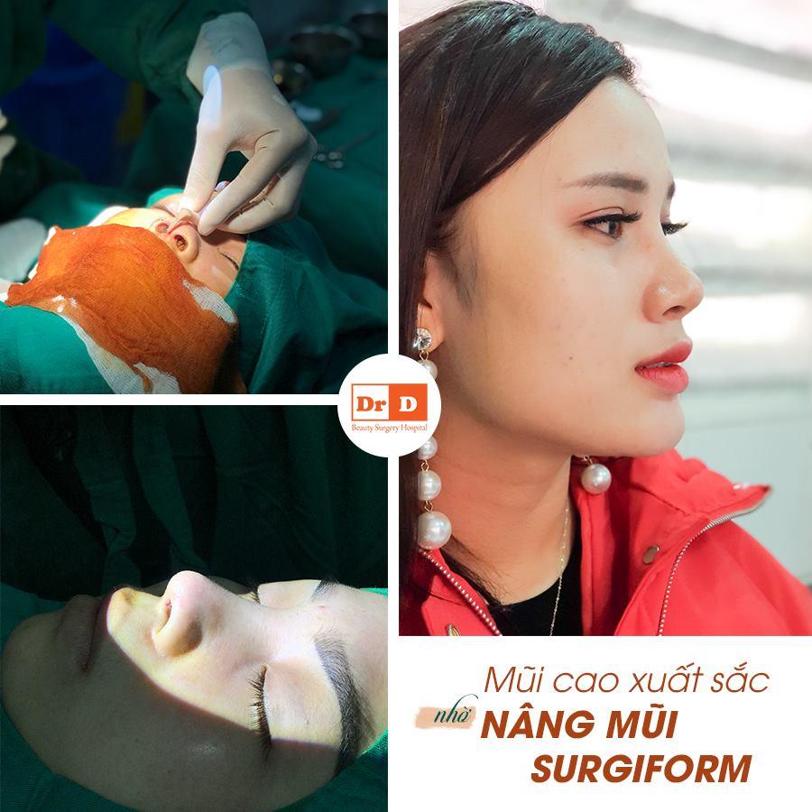 Nâng mũi Surgiform đòi hỏi tay nghề bác sĩ phải cao