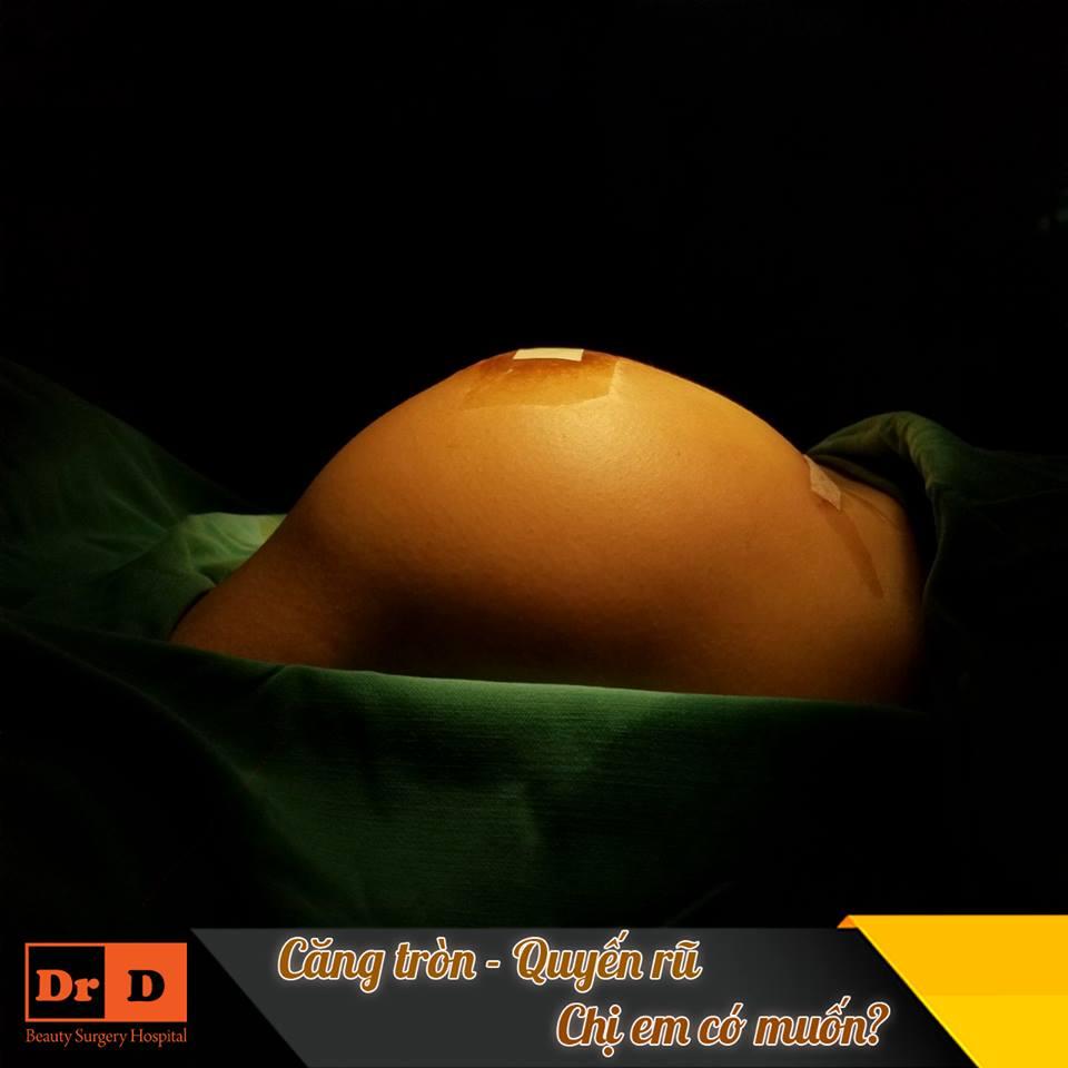 Biến đổi vòng 1 ngoạn mục bằng nâng ngực nội soi