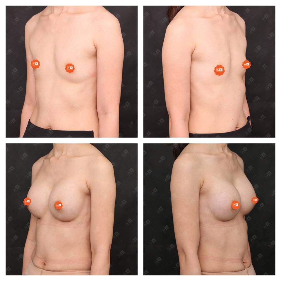 Nâng ngực nội soi cải tạo dáng ngực hoàn hảo