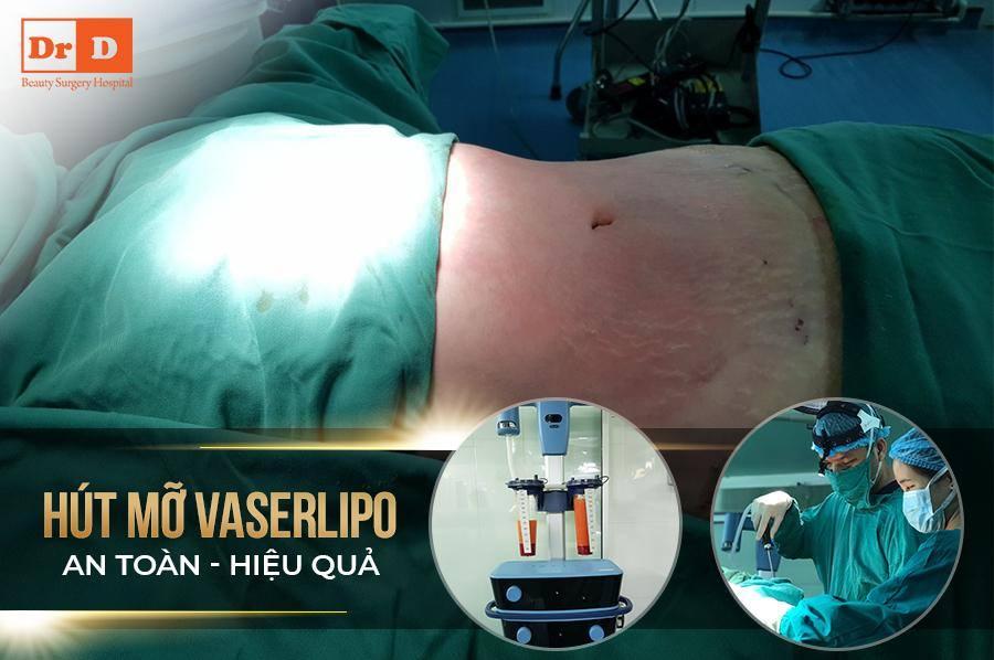 Vaser Lipo triệt tiêu hiệu quả lượng mỡ thừa của cơ thể