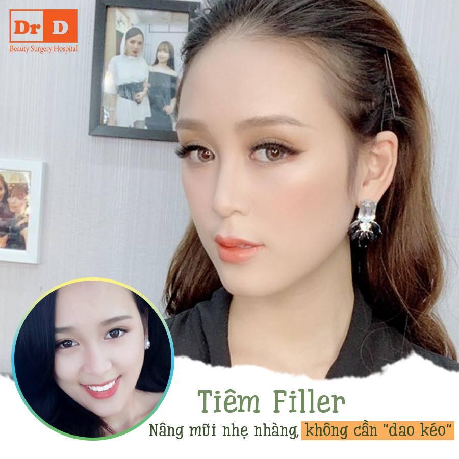 Tiêm Filler dễ dàng sở hữu dáng mũi đẹp tự nhiên