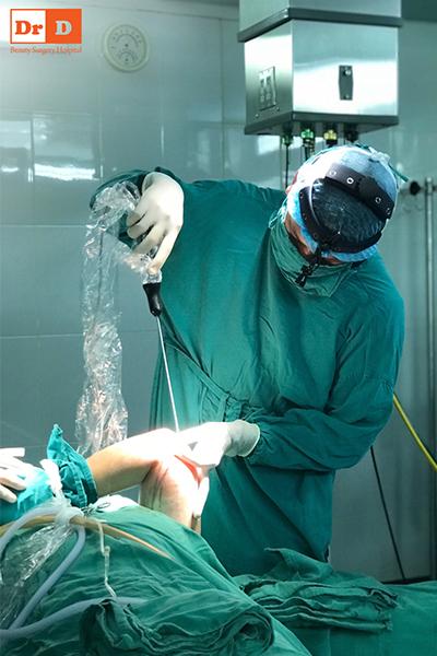 Tay nghề bác sĩ Thẩm mỹ DrD cam kết hút mỡ Vaser Lipo hiệu quả